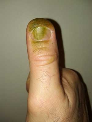 The defoliating tool (my thumb)